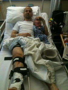 A Fractured Femur: Recovering From a Broken Leg